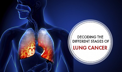 Lung Cancer Stages