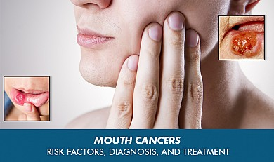 mouth cancer treatment