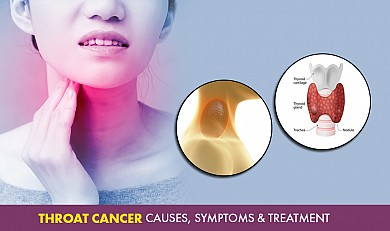 Throat cancer - Causes, Symptoms & Treatment