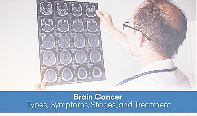 Brain Cancer - Types, Symptoms, Stages, and Treatment
