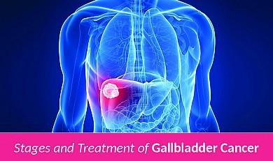 gallbladder cancer treatment