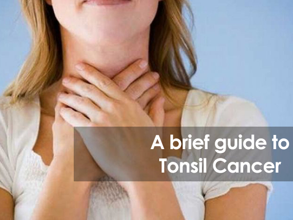 A Brief guide to Tonsil Cancer - Cancer Healer Center