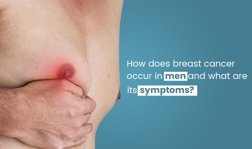 How Does Breast Cancer Occur In Men And What Are Its Symptoms