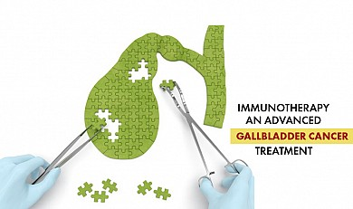 Immunotherapy: An Advanced Gallbladder Cancer Treatment