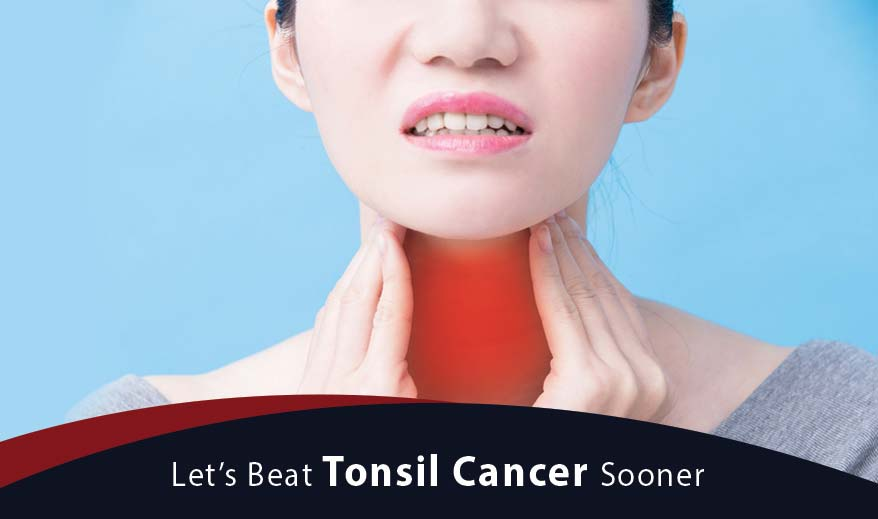 Let's Beat Tonsil Cancer Sooner - Cancer Healer Center