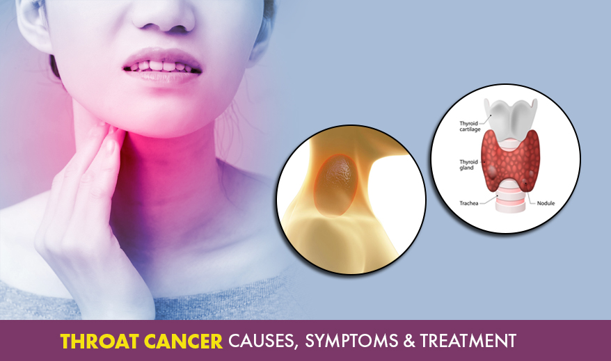 Throat cancer - Causes, Symptoms & Treatment - Cancer Healer