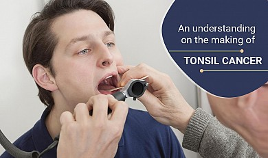 An understanding on the making of tonsil cancer